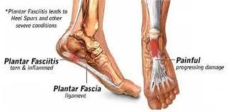 Planters Fasciitis Surgery by Dr Carl Salvati Author At Associates In Medicine U0026 Surgery