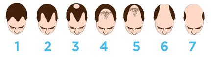 hair transplant calculator graft calculator calculate the number of grafts you need