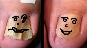 how much does toenail fungus laser cost rid toenail fungus youtube