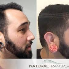 hair transplant costs in the philippines natural transplants hair restoration clinic 24 photos hair
