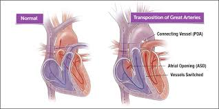 Heart Anatomy Arteries Transposition Of The Great Arteries In Children Boston