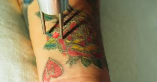 tattoo removal ink