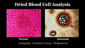 Double Blind Research Live Blood Test Phorever Young Blog