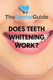 Does Laser Teeth Whitening Work Does Teeth Whitening Work The Dental Guide