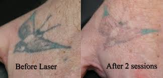 laser tattoo removal tattoo removal 1 free hd wallpapers