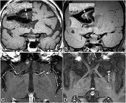 intracranial vessel wall mri principles and expert consensus