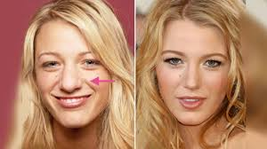 5 best celebrity nose jobs in hollywood before and after youtube