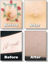 12 best tattoo removal laser images on pinterest from home