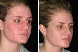 aquaphor for acne how useful it is aquaphor for tattoos