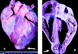 pathogenesis of chronic chagas heart disease circulation