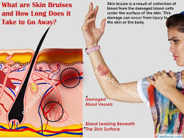 what are skin bruises how does it take to go away causes