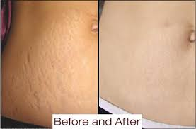 red light therapy cellulite stretch marks 33 microspa