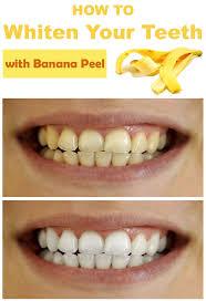 whitening dental wonderful teeth whitner 18 teeth whitening home
