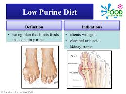 foods low in purines uric acid quinoa high uric acid home remedy