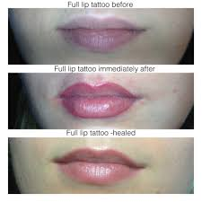 Lip Tattoos On - lip liner permanent cosmetic and laser clinic manly