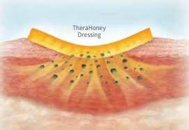 therahoney wound gel honey dressing for difficult to dress wounds