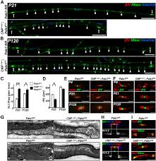 the polarity protein pals1 regulates radial sorting of axons