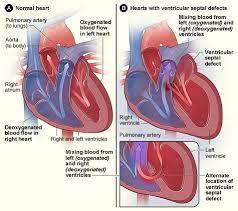 Anatomy Of Human Heart Pdf Congenital Heart Defect Wikipedia