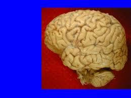 Gross Brain Anatomy Grossbrain1a Jpg