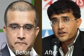ranbir kapoor hair transplant does saurav ganguly wear a hair wig during live commentaries and