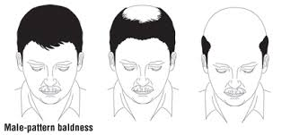 thinning hair in women on top of head hair loss guide causes symptoms and treatment options