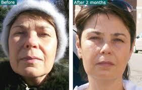 deep penetrating light therapy device photo rejuvenation infrared led light therapy before and after photos