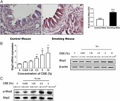 shp2 plays an important role in acute cigarette smoke mediated