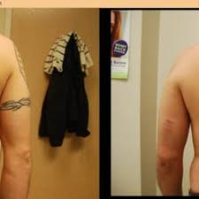 midwest tattoo removal 17 photos tattoo removal 230 center