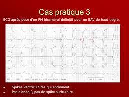 pacemaker chambre ou stimulateurs cardiaques ppt télécharger
