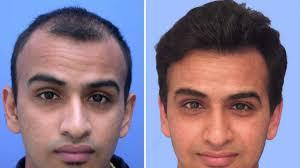 hair bonding hair weaving bonding wig fixing men women shahnaz beauty care