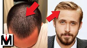 hairstyles for thin hair on head fine hair vs thin hair same or different men s hair types guide