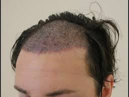 when are hair transplant grafts safe youtube