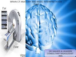 Ct Anatomy Of Brain Ppt Brain Ct Anatomy And Basic Interpretation Part I