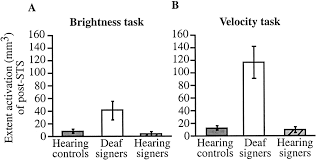 impact of early deafness and early exposure to sign language on