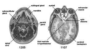 Mri Sectional Anatomy Medical Imaging