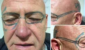 man wakes up after stag do with ray ban glasses tattooed on his