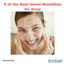 Face Acne Map 5 Of The Best Herbal Home Remedies For Acne Blog