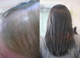 racoon hair extensions nicky wyatt hair hair in recovery