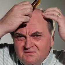 bandage hair shaped pattern baldness 12 best procerin testimonies images on pinterest my hair hair
