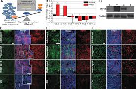 host age is a systemic regulator of gene expression impacting