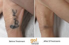 hand tattoo after a year danielhuscroft com
