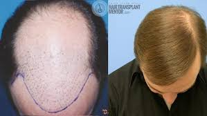 hair transplant month by month pictures hair transplant results after 9 months the finale
