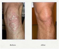 psoriasis and ultraviolet light phototherapy for psoriasis dr kiran kumar a dr kiran kumar a