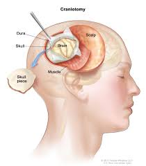 What Portion Of The Brain Controls Respiration Central Nervous System Tumors Treatment Pdq U2014patient