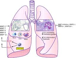 the diagram of a lung cell diagram of lung cancer diagram