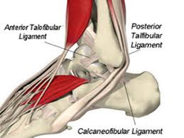 Ankle Ligament Tear Mri Ankle Ligament Tear Riverside Ankle Instability Rancho Cucamonga