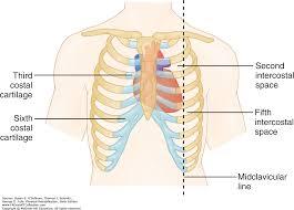 Borders Of The Heart Anatomy Heart Disease Physical Rehabilitation 6e F A Davis Pt