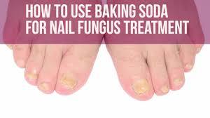nail art nail fungus treatment imposing pictures design faq
