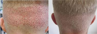 fue haircuts donor zone for hair transplant surgery what is it