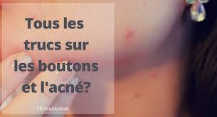 Soigner L Acne Se Débarrasser Des Boutons D Bouton Sur Le Nez 10 Trucs Pour L Enlever